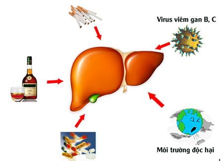 Nguyên nhân mắc bệnh xơ gan cổ trướng 1